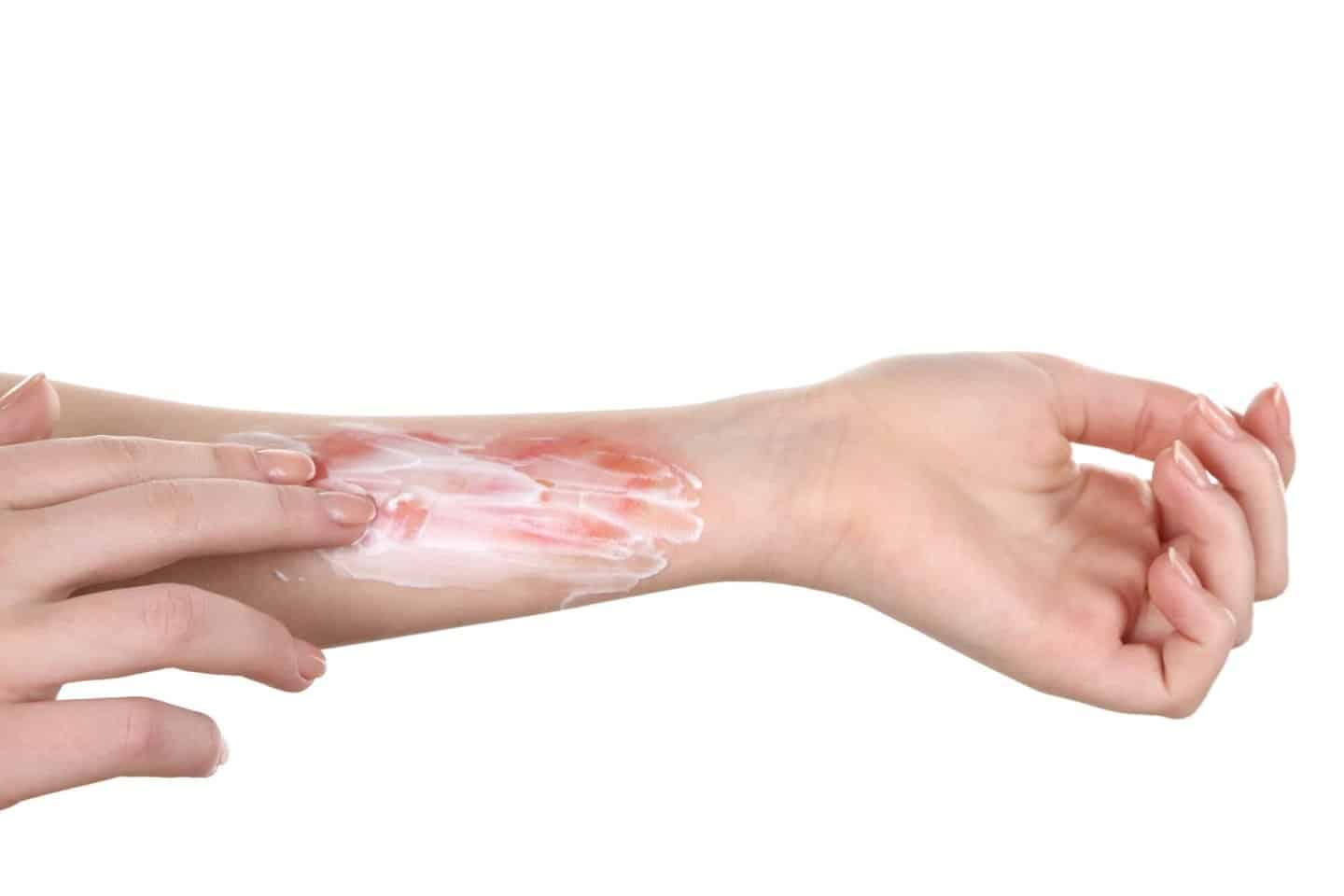 Things to know about burn injuries. Image of a burn on a hand