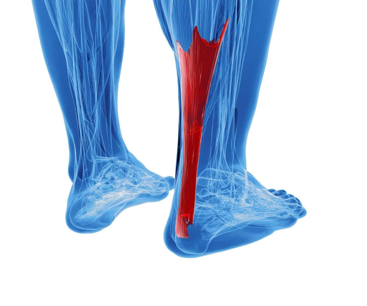 Achilles Tendinopathy – A Closer Look