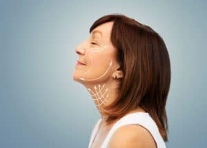 Choosing the Best Facelift Option For You